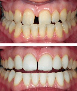 Porcelain Veneers - Dentist Paris TX