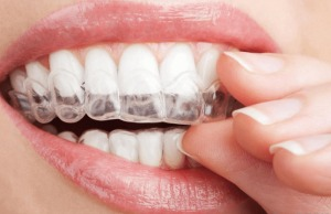 Teeth Whitening - Dentist Paris TX