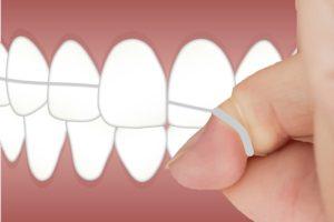 Flossing cavities between teeth