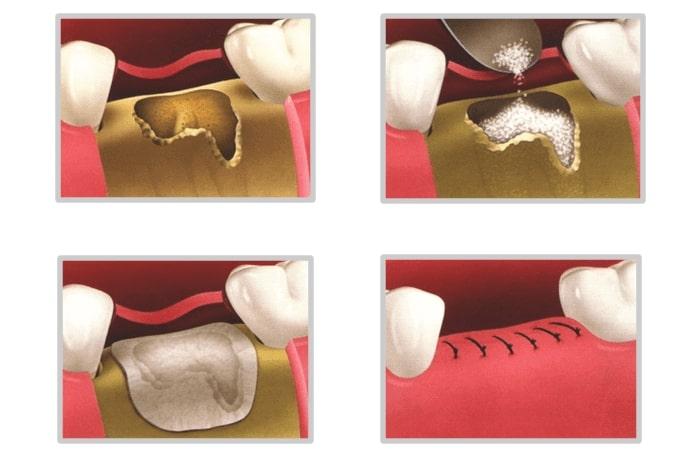 Bone & Gum Grafting - Dentist Paris TX