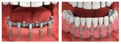 dental-implant-dentures-paris-tx