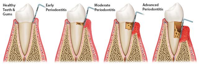 periodontal-treatment-paris-tx-dentist