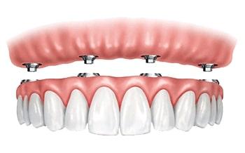 Teeth In A Day - Dentist Paris TX