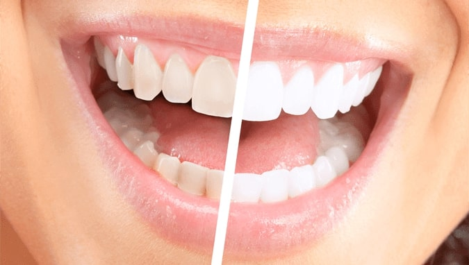 teeth-whitening-paris-tx-3