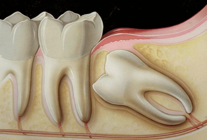 wisdom-teeth-extraction-removal-paris-tx-dentist